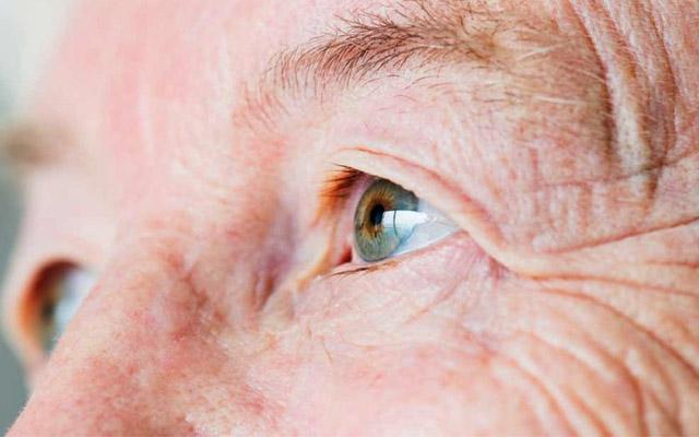 รู้เท่าทันอาการขาดวิตามินซี สูญเสียการมองเห็น